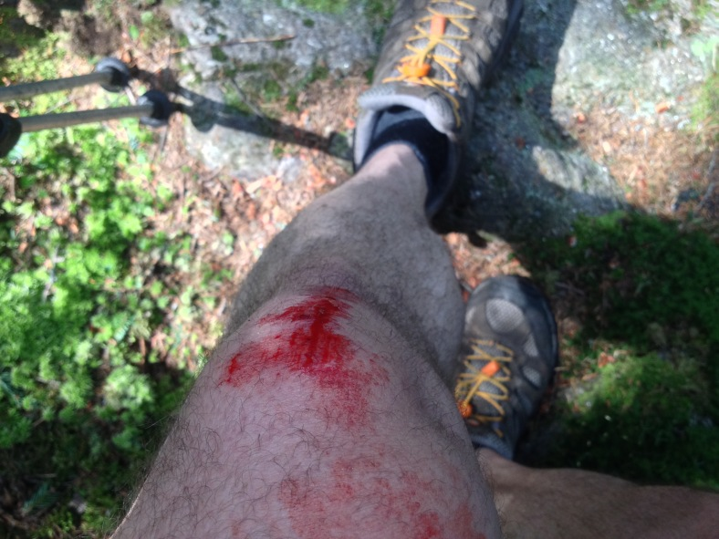 Managed to bash my knee climbing over a boulder. Only a minor scrape, but it made a mess for a while.
